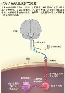 电刺激激活免疫系统疗法2
