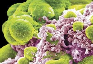 癌症治疗新策略:靶向休眠细胞,预防复发