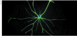 Tapping into the brain's star power1
