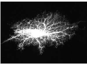 Tapping into the brain's star power3