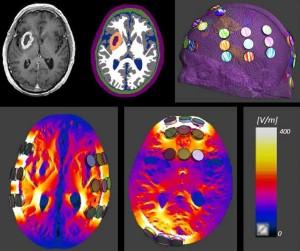 使用头部模型研究TTField治疗中脑组织内的电场强度