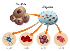 纵观干细胞临床转化1