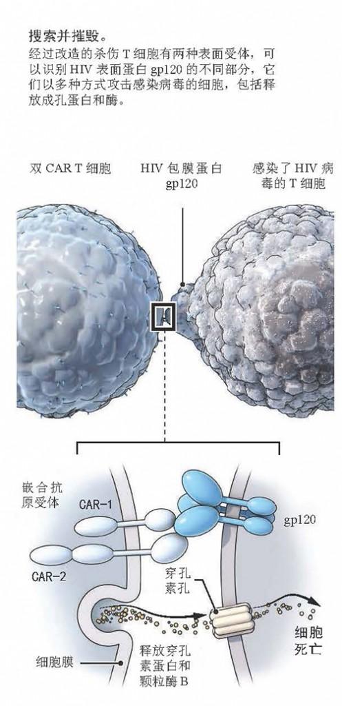 CAR T细胞疗法治疗HIV