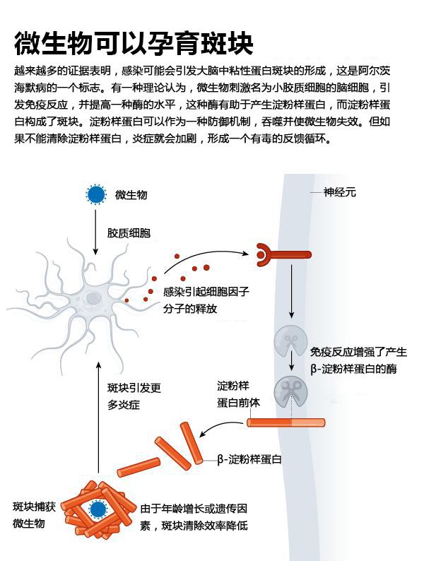 感染会引发阿尔茨海默病吗3