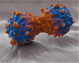 癌症治疗的未来将会是精准医学1