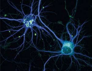 基因疗法有望治愈大脑疾病 2