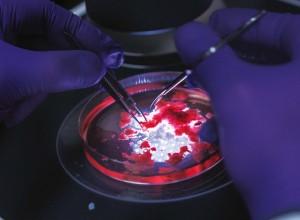追踪癌症干细胞的起源