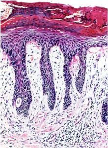 银屑病照亮了免疫学进步的道路